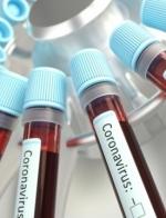В Україні 2 477 нових випадків COVID