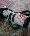 ООН: за два роки в Україні - майже 100 випадків залякування і нападів на журналістів
